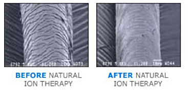 Natural ION therapy